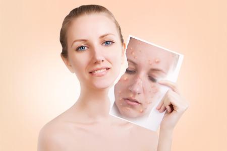 varicela: blond female model releases her skin from pimples