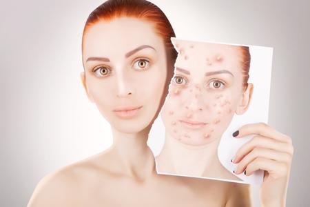 varicela: problemas de acné, retrato de mujer pelirroja