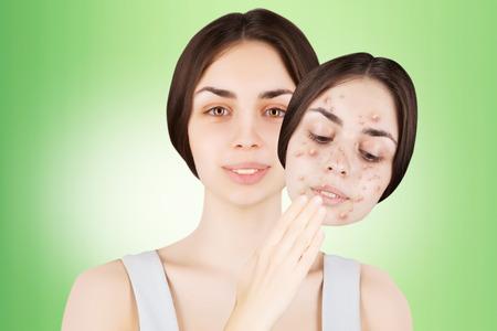 varicela: multi-racial female brunette releases her skin from pimples
