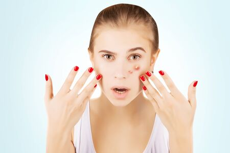 varicela: girl with funny disgusted face examines her pimples Foto de archivo