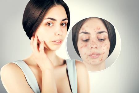 varicela: Mujer morena peleas con acné Foto de archivo