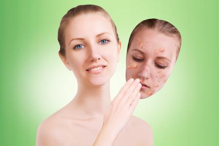 varicela: Rubia modelo femenino libera su piel de granos