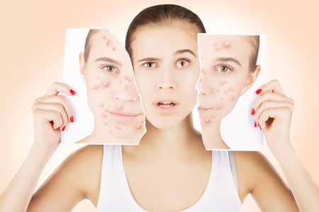 young caucasian blond model fights with pimples Stock Photo - 80086225