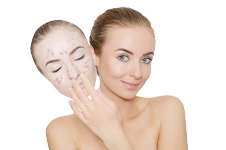 varicela: la mujer quita la máscara con el acné y las espinillas, piel renovando el concepto Foto de archivo