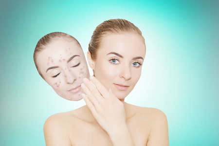 varicela: woman takes away mask with acne and pimples, skin renovating concept