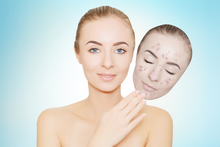 pimples: woman takes away mask with acne and pimples, skin renovating concept