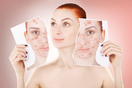squeezing: acne problems, red haired woman portrait Stock Photo