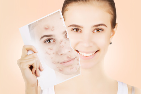 varicela: young blond woman releases her skin fron pimples