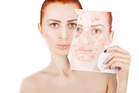 acne problems, red haired woman portrait Stock Photo