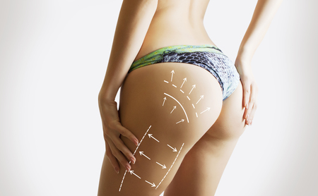 dotted female body for operation of fat reduction
