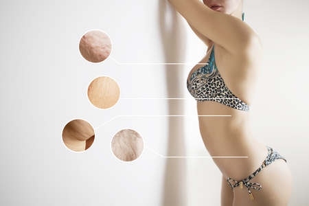 weight loss concept -problem zones of female body