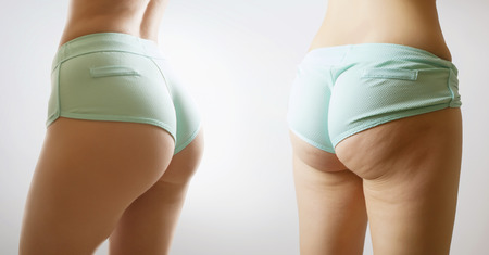 woman body before and after figure transformantion Stockfoto