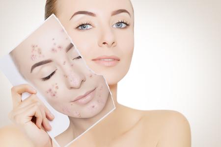 Nahaufnahmeporträt der Frau mit sauberer Haut, die Porträt mit pickeliger Haut hält