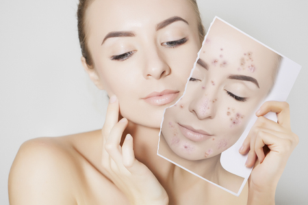 closeup portrait of woman with clean skin holding portrait with pimpled skin Фото со стока - 103479197