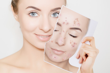 closeup portrait of woman with clean skin holding portrait with pimpled skin 版權商用圖片 - 105127030