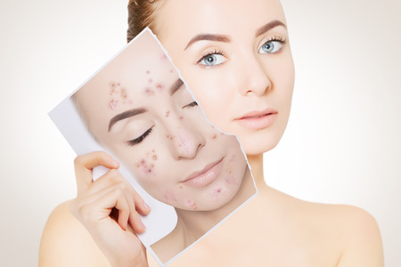 closeup portrait of woman with clean skin holding portrait with pimpled skin