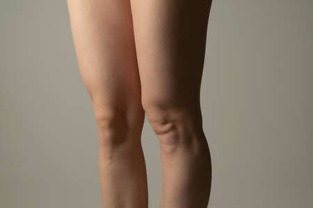 Fat legs and hips, profile view. Woman`s hips closeup raw studio shot in grey background. Dieting and fat loss concept. 版權商用圖片