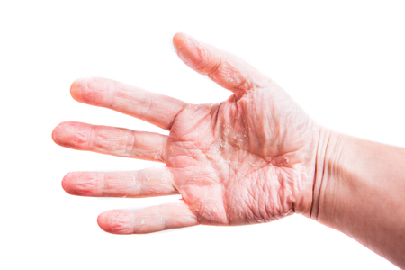 eczema: The problem with many people - eczema on hand. Isolated background.