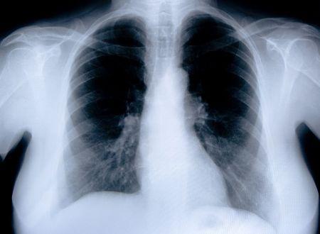 chest x ray: salute di un medico immagine a raggi x del torace