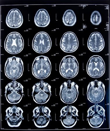 cancer x ray: health medical image of an mri of the head showing the brain Stock Photo
