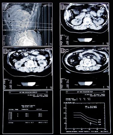 cancer x ray: medical scan to show sickness in intestine or bones