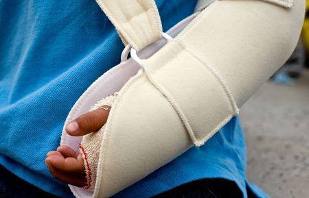 draagdoek: een kind met een gebroken linkerarm op een strop Stockfoto