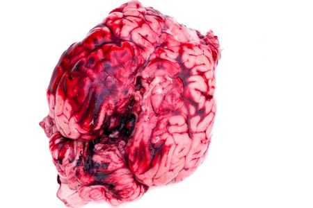 flesh surgery: Bovine brain close up with some blood on white background