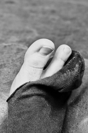 toenails: A black sock with a hole in it Stock Photo