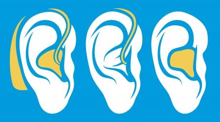 oreille appareil auditif problème sourds