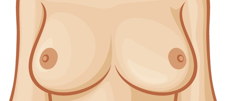 breast implant: beautiful female bust