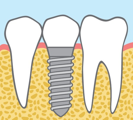 dental clinics: dental implant Illustration