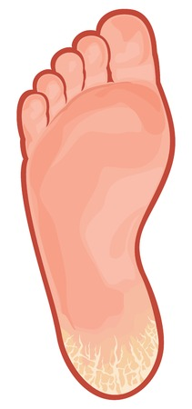 foot fungus cracked heel Illustration
