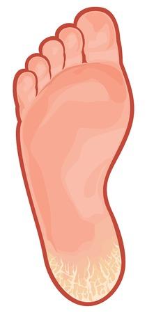 foot fungus cracked heel Vettoriali