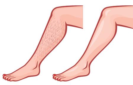 mujer sexy desnuda: piernas de la mujer antes y después de la depilación Vectores
