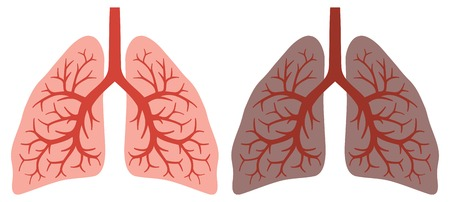lung disease: healthy lung and smokers lung lungs before and after a lifetime of smoking