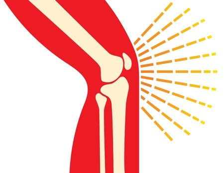 articulation: knee joint bones - pain icon (orthopedic clinics design) Illustration