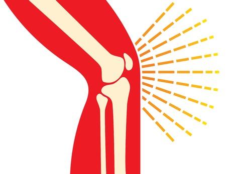 rheumatism: knee joint bones - pain icon (orthopedic clinics design) Illustration