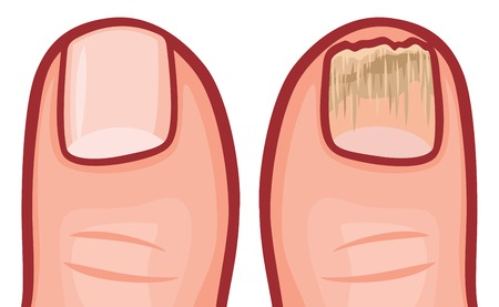 ailment: fungal infection of the nails vector illustration Illustration