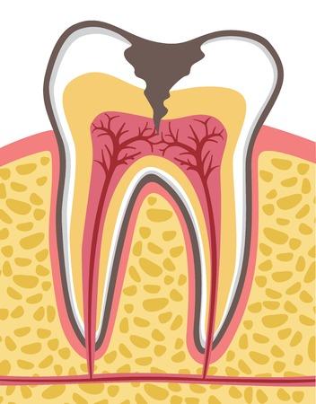 caries dental: sección transversal del diente (anatomía) con la caries dental Vectores