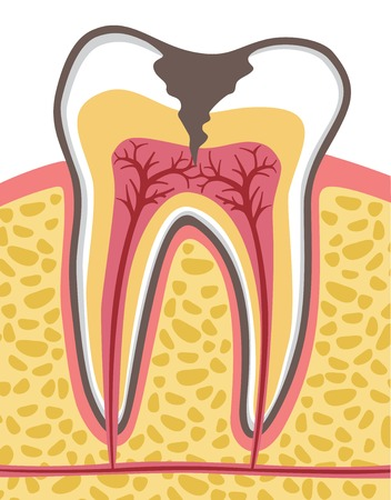 tooth cross section (anatomy) with dental caries