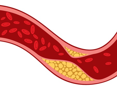 cholesterol: artery blocked with cholesterol vector illustration (blood pressure design, the structure of a vein with plaque - arteriosclerosis)