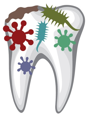 human tooth with caries and bacteria