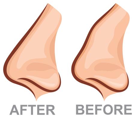 Neus voor en na rhinoplastie (plastische chirurgie vectorillustratie)