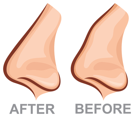 running nose: Nose before and after rhinoplasty (plastic surgery vector illustration)