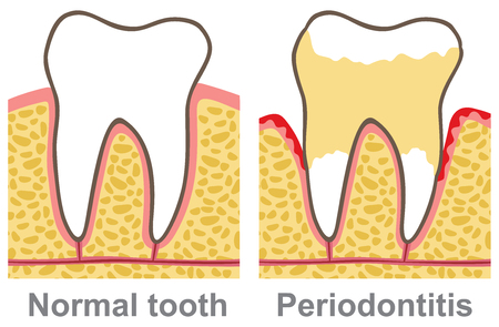 infected: human gum bleeding - periodontal disease (oral care vector illustration, gingivitis)