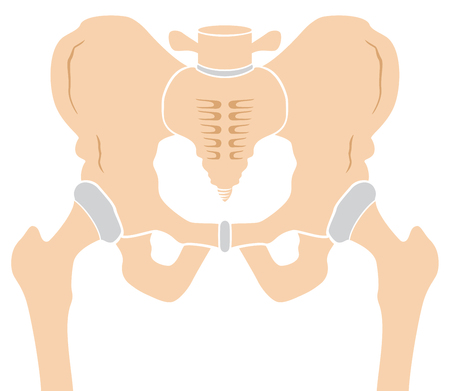 osteoarthritis: Medically accurate illustration of the hip bone