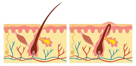 안쪽으로 자란 것과 정상적인 머리 (인간의 피부 해부학 그림) 일러스트