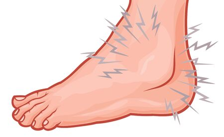Ankle sprain vector illustration