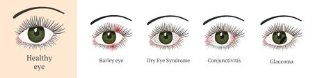 Eye disease. Most common eye problemc - conjunctivitis, glaucoma, dry eye syndrome, barley eyes. Ophthalmology flat health vector illustration.
