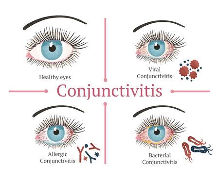 Glaucoma chronic eye pathology. Eye disease. Ophthalmology health. Glaucoma types. Vector flat eye healt illustration.  イラスト・ベクター素材